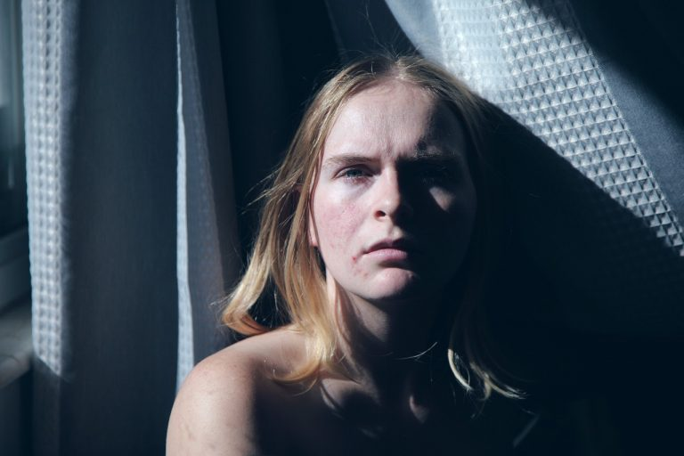 Lee más sobre el artículo El acné no es un problema exclusivo de los adolescentes